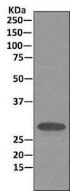 Immunoprecipitation - Anti-Stomatin antibody [EPR10421] (ab166623)
