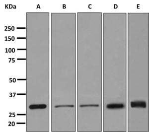 Western blot - Anti-Stomatin antibody [EPR10421] (ab166623)