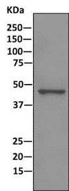 Immunoprecipitation - Anti-DEK antibody [EPR11034] (ab166624)