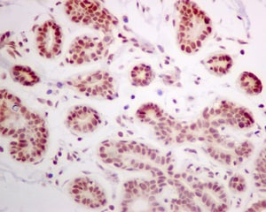 Immunohistochemistry (Formalin/PFA-fixed paraffin-embedded sections) - Anti-DEK antibody [EPR11034] (ab166624)