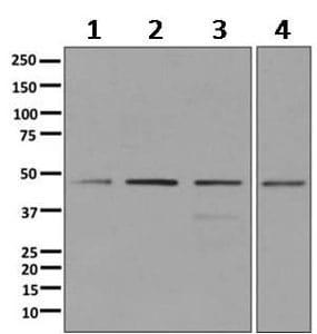 Western blot - Anti-DEK antibody [EPR11034] (ab166624)