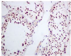 Immunohistochemistry (Formalin/PFA-fixed paraffin-embedded sections) - Anti-Fibrillarin antibody [EPR10823(B)] - Nucleolar Marker (ab166630)
