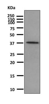 Western blot - Anti-Parathyroid Hormone antibody [EPR8480] (ab166631)