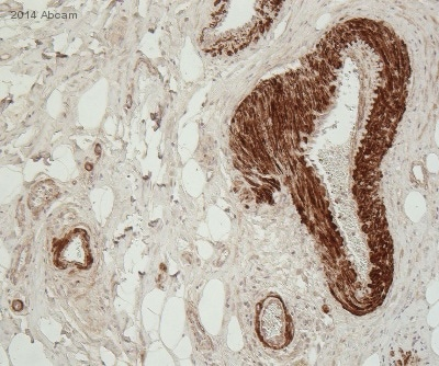 Immunohistochemistry (Formalin/PFA-fixed paraffin-embedded sections) - Anti-Osteopontin antibody [7C5H12] (ab166709)