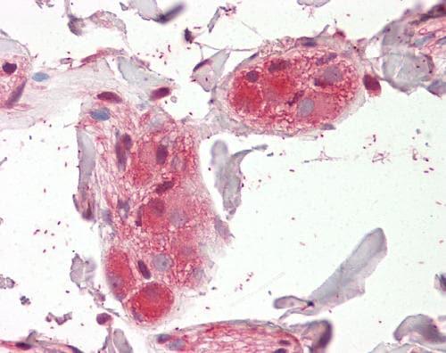 Immunohistochemistry (Formalin/PFA-fixed paraffin-embedded sections) - Anti-Nicotinic Acetylcholine Receptor alpha 5/CHRNA5 antibody (ab166718)