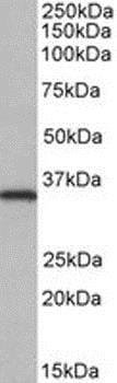 Western blot - Anti-NEK7 antibody (ab166776)