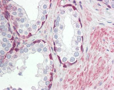 Immunohistochemistry (Formalin/PFA-fixed paraffin-embedded sections) - Anti-TRIM59 antibody (ab166793)