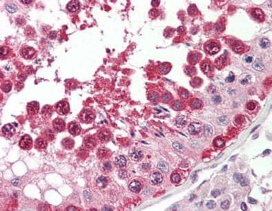 Immunohistochemistry (Formalin/PFA-fixed paraffin-embedded sections) - Anti-Translin/TSN antibody (ab166827)