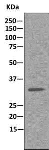 Immunoprecipitation - Anti-U1A antibody [EPR10632] (ab166890)