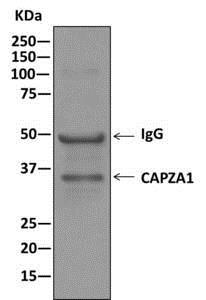 Immunoprecipitation - Anti-CAPZA1 antibody [EPR11210] (ab166892)