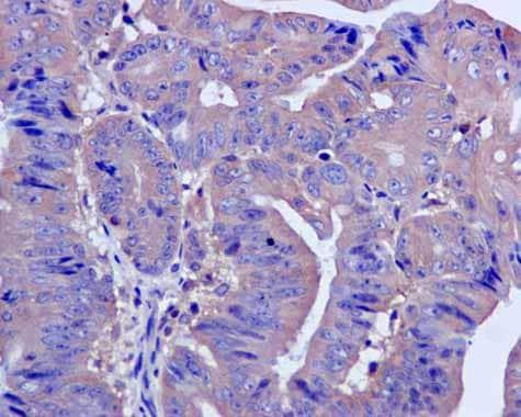 Immunohistochemistry (Formalin/PFA-fixed paraffin-embedded sections) - Anti-CAPZA1 antibody [EPR11210] (ab166892)