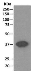 Immunoprecipitation - Anti-Cathepsin V antibody [EPR10723(B)] (ab166894)