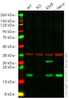 Western blot - Anti-Acid phosphatase/ACP1 antibody [EPR9839] (ab166896)
