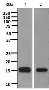 Western blot - Anti-C1D antibody [EPR11122] (ab166897)
