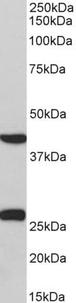 Western blot - Anti-DUSP6 antibody (ab166922)