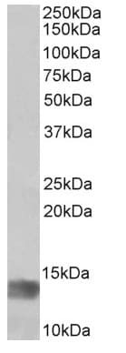 Western blot - Anti-Melanoma Inhibitory Activity antibody (ab166932)