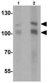 Western blot - Anti-RNF20 antibody - N-terminal (ab167086)