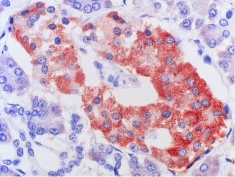 Immunohistochemistry (Formalin/PFA-fixed paraffin-embedded sections) - Anti-GPCR MRGX2 antibody [1D3] (ab167125)