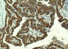 Immunohistochemistry (Formalin/PFA-fixed paraffin-embedded sections) - Anti-TMPRSS3 antibody [EPR7048] (ab167160)