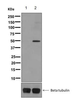 Western blot - Anti-GAP43 (phospho S41) antibody [EPR1854(2)] (ab167162)