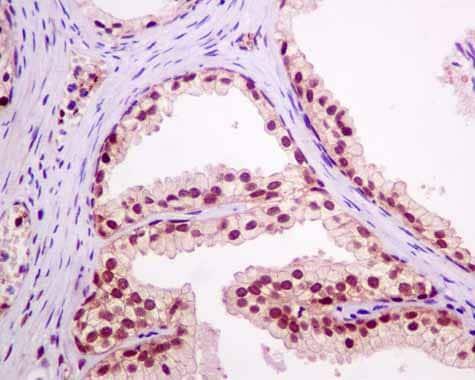 Immunohistochemistry (Formalin/PFA-fixed paraffin-embedded sections) - Anti-RBM47 antibody [EPR9658] (ab167164)