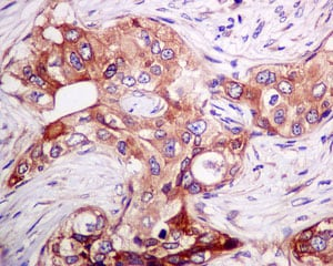 Immunohistochemistry (Formalin/PFA-fixed paraffin-embedded sections) - Anti-MLD antibody [EPR9681] (ab167169)