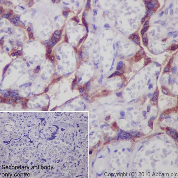 Immunohistochemistry (Formalin/PFA-fixed paraffin-embedded sections) - Anti-Prostaglandin E Receptor EP2/PTGER2 antibody [EPR8030(B)] (ab167171)