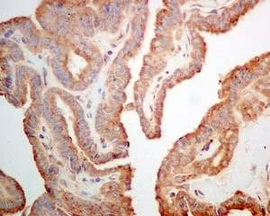 Immunohistochemistry (Formalin/PFA-fixed paraffin-embedded sections) - Anti-AMF antibody [EPR11663(B)] (ab167394)