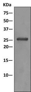 Immunoprecipitation - Anti-PSMG1 antibody [EPR10223] (ab167396)