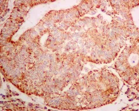 Immunohistochemistry (Formalin/PFA-fixed paraffin-embedded sections) - Anti-ERAB antibody [EPR11839(B)] (ab167410)