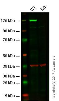 Western blot - Anti-KIF5B antibody [EPR10276(B)] (ab167429)