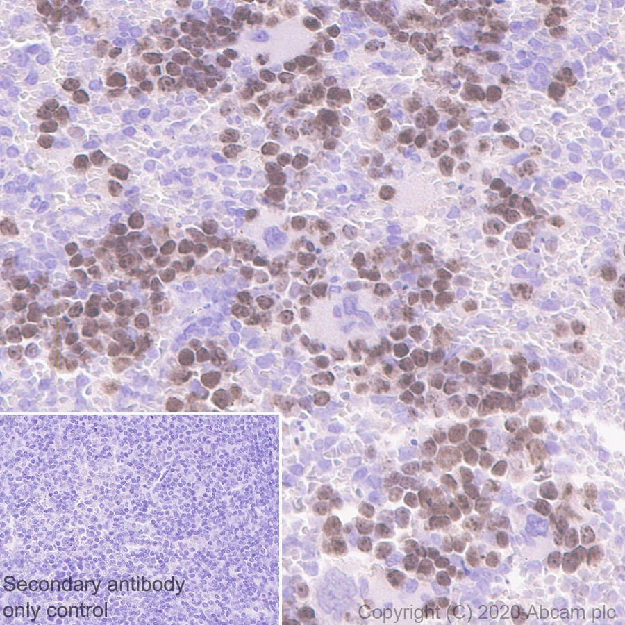 Immunohistochemistry (Formalin/PFA-fixed paraffin-embedded sections) - Anti-Survivin antibody [EPR2675] - BSA and Azide free (ab167450)