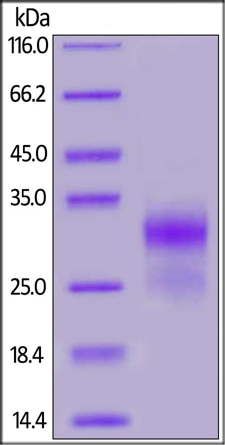 SDS-PAGE - Recombinant Human Sclerostin protein (ab167702)