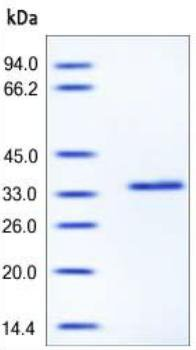 SDS-PAGE - Recombinant Human NLGN4Y protein (ab167704)