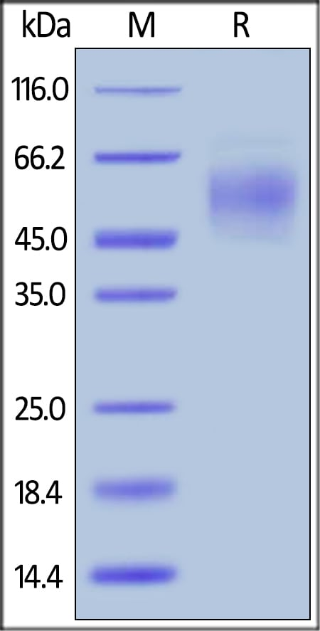SDS-PAGE - Recombinant human CEACAM6 protein (ab167705)