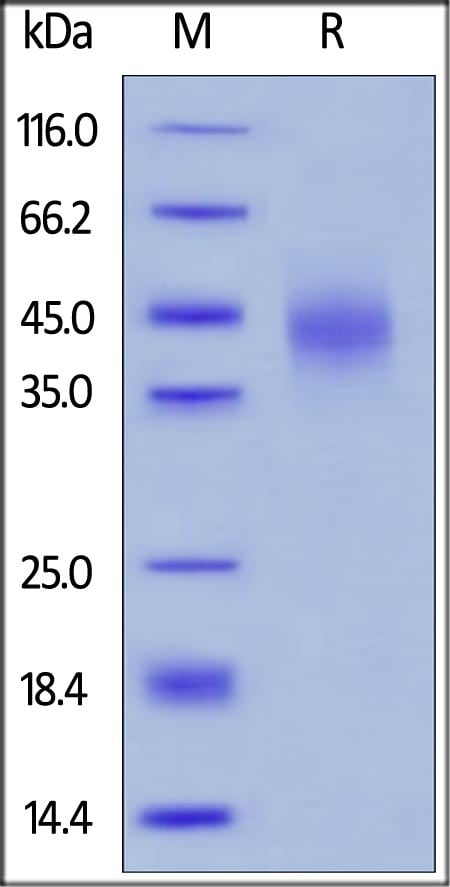 SDS-PAGE - Recombinant human TFPI protein (ab167711)