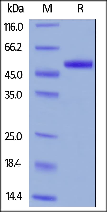 SDS-PAGE - Recombinant human uPA protein (ab167714)