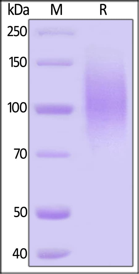 SDS-PAGE - Recombinant HIV-1 gp120 (Du172.17 protein (ab167715)
