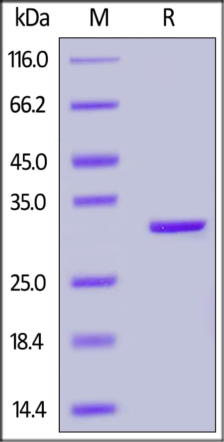 SDS-PAGE - Recombinant human Carbonic anhydrase 2/CA2 protein (ab167716)