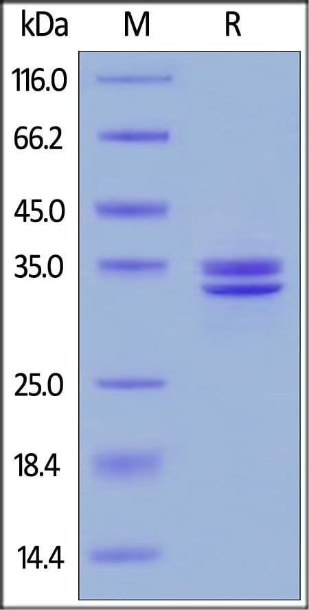 SDS-PAGE - Recombinant human HMGB1 protein (ab167718)