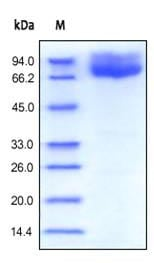 SDS-PAGE - Recombinant human CD86 protein (ab167720)