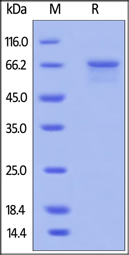 SDS-PAGE - Recombinant human IL-4R protein (ab167726)