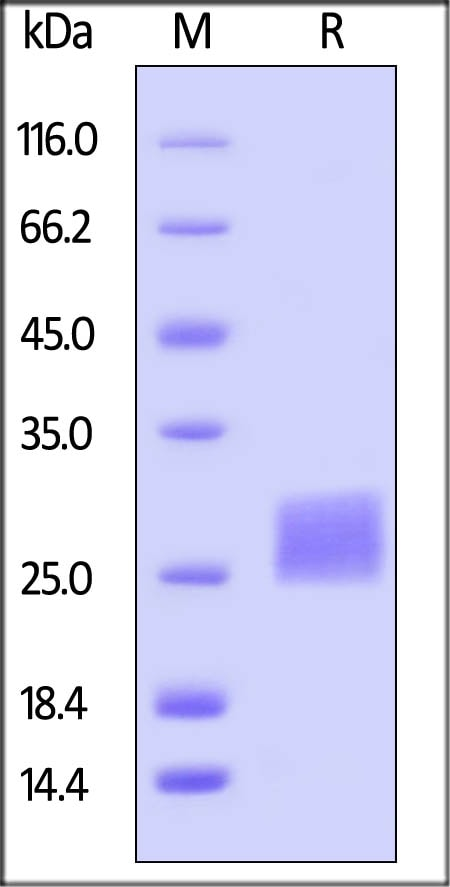SDS-PAGE - Recombinant Human CTLA4 protein (ab167727)