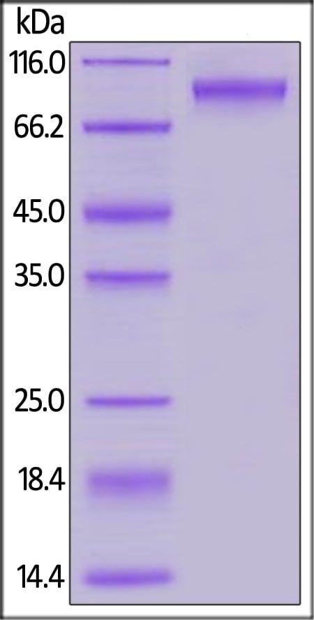 SDS-PAGE - Recombinant Human Neuroligin 4 protein (His tag) (ab167730)