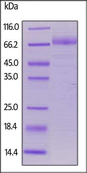 SDS-PAGE - Recombinant human CD36 protein (His tag) (ab167735)