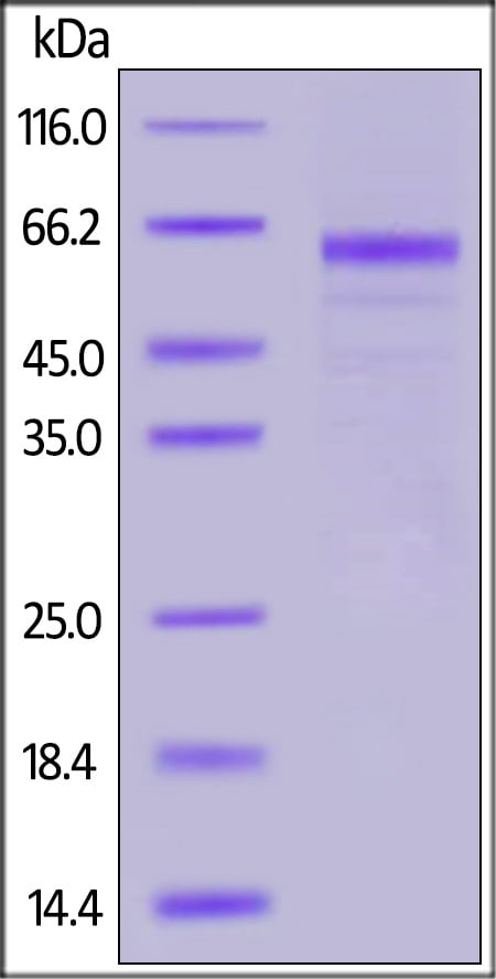 SDS-PAGE - Recombinant human Furin protein (ab167741)