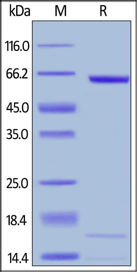 SDS-PAGE - Recombinant mouse PCSK9 protein (ab167759)