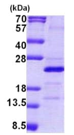 SDS-PAGE - Recombinant Human MRPS25 protein (denatured) (ab167854)