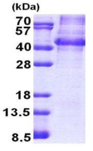 SDS-PAGE - Recombinant Human NANOGP8 protein (denatured) (ab167873)