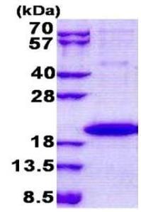 SDS-PAGE - Recombinant Human IL36 gamma/IL-1F9 protein (ab167874)